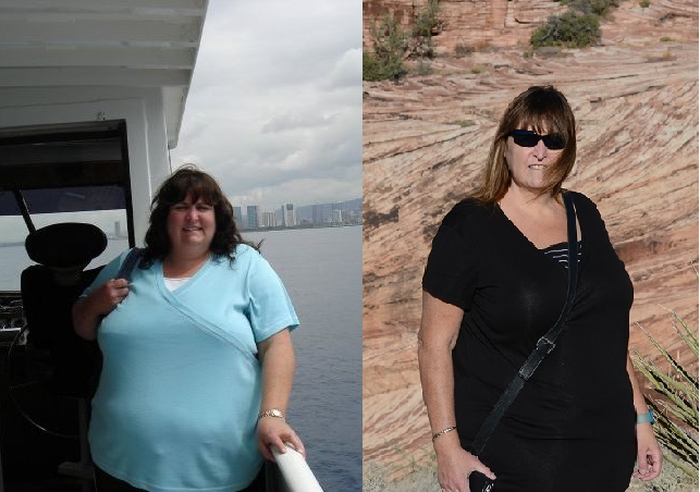 Denise BEFORE & AFTER