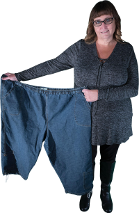 Denise lost weight with Revision Surgery
