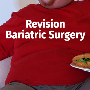 smartshape revision bariatric surgery